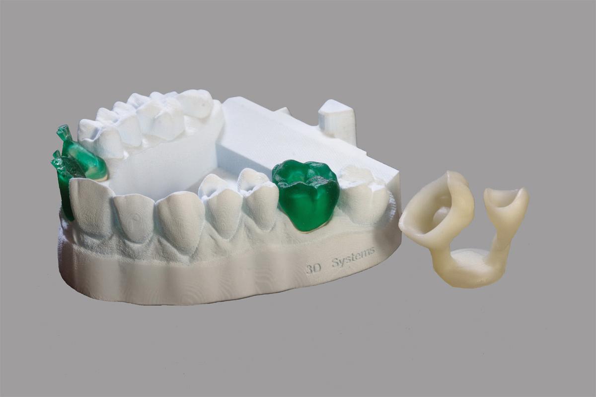 Prototipo-dentale-realizzato-con-la-stampante-3D-ProJet-1200
